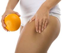 Cellulite bekämpfen