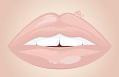 Weg kruste schnell herpes wie geht Lippenherpes schnell