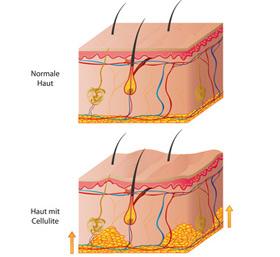 Hautbild Cellulite